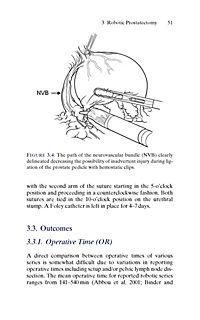 Urologic Robotic Surgery in Clinical Practice - Produktdetailbild 2