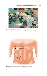 Urologic Robotic Surgery in Clinical Practice - Produktdetailbild 5